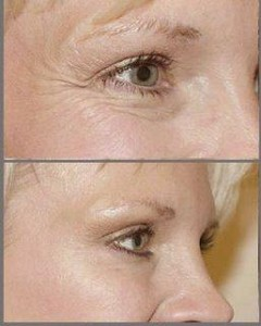 Botox-for-Crows-feet
